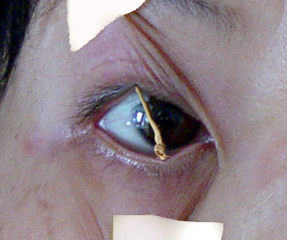 酷刑演示:用掃帚棒支起眼皮, 不讓睡覺。(明慧網)