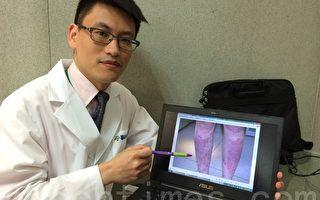 乾癬又稱為銀屑病,是一種皮膚慢性發炎的免疫性疾病,會反覆發作,但不具傳染性,經治療後可有效改善。(郭益昌/大紀元)