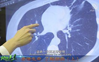 視頻:肺癌的症狀和分型