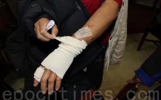 许婆婆的左手食指受伤最重,几乎被砍断。(蔡溶/大纪元)