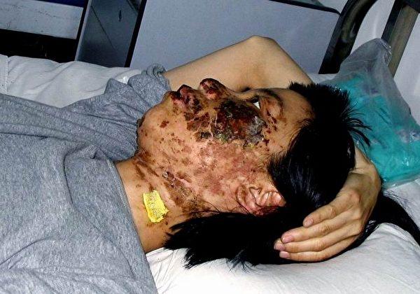高蓉蓉在龍山教養院遭長時間電擊毀容。(明慧網)