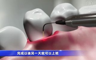 近十年来,微创激光应用在牙科的技术开始普及,也让人容易接受。(新唐人电视台视频截图)