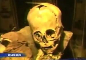 巨头外星人头骨未长合有凹洞,有智齿。(视屏撷图)