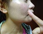 湿疹、过敏性皮肤炎、荨麻疹的皮肤痒疹,常常来得比较突然。(坜新医院/提供)