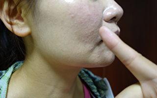 濕疹、過敏性皮膚炎、蕁麻疹的皮膚癢疹,常常來得比較突然。(壢新醫院/提供)