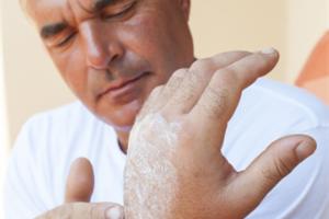 燙傷會損傷人體表皮,而依照損害的深度而有不同的分類。(Fotolia)