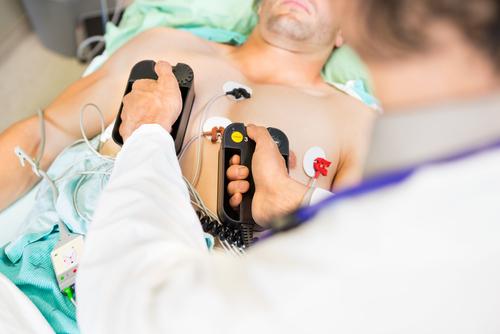 (Image of defibrillator paddles via Shutterstock)