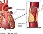 心血管問題是導致死亡的一個重要因素。(Fotolia)