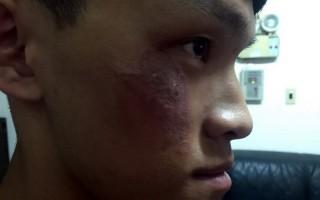 嘉義縣黃姓男大生拍打臉上的隱翅蟲,不以為意,隔了2天,臉部出現大面積紅腫才就醫,治療後,情況已好轉;醫師籲身體有蟲附著,不要立即拍打,避免打到隱翅蟲。(民眾提供)