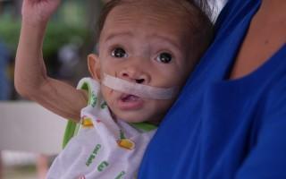 菲律宾的罗伦泰(图)9个月大,体重仅3200克。他有严重唇颚裂,却营养不良、体重不足无法开刀。罗慧夫颅颜基金会推认养计划,帮助孩子有机会开刀重获新生。 (罗慧夫颅颜基金会提供)(中央社)