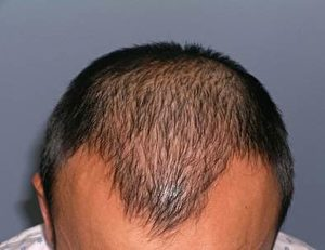 ARTAS手術前的頭髮。(Miguel Canales博士提供)