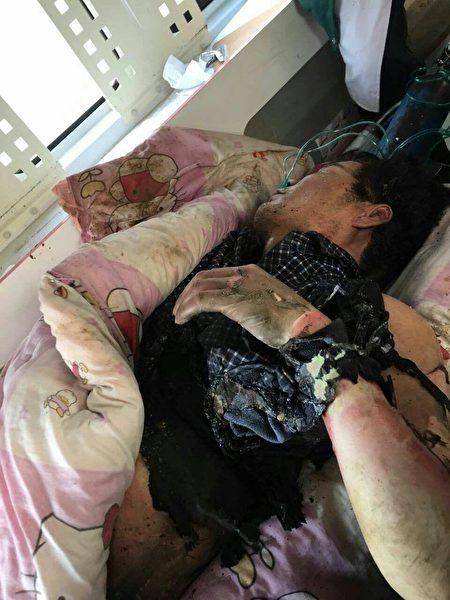 11月30日,河北邯鄲市永年區岳莊村發生一起因土地糾紛引發的強拆燒人事件。圖為燒傷者。(村民提供)