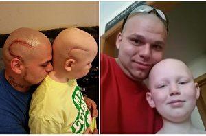 开颅落疤 父纹身以随 抗癌小勇士坚强面对
