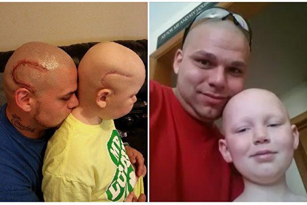 不到半年前,乔什按儿子疤痕的样子在头部纹身;互为依祜的父子俩如今再抗脑癌。(Courtesy of Josh Marshall/大纪元合成)