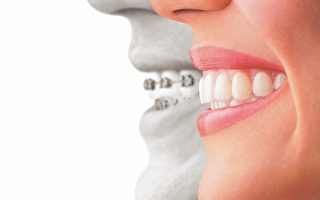 ClearCorrect像Invisalign一樣,使用可摘戴的透明矯治器來逐步矯正牙齒,但更經濟實惠。(SDG提供)