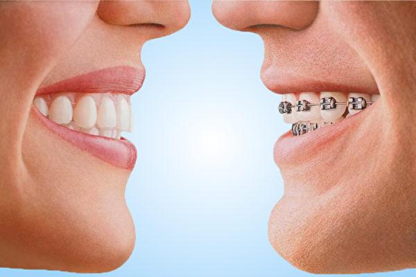 矯正牙齒時,了解最新的治療方法非常重要,這會幫您避免盲目追隨陳舊的正畸方法。(SDG提供)