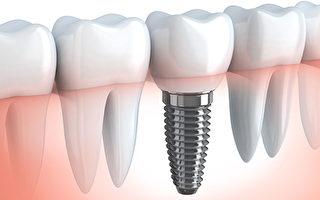 灣區植牙專家雷景祥:避開「全口種植牙」8大誤區(上)