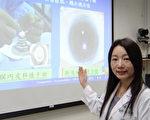 奇美醫學中心眼科部主治醫師張昱欣表示,白內障手術後,若發生視力模糊以及眼睛疼痛情形,可能是「人工水晶體相關之水疱性角膜病變」,建議至眼科評估。(奇美醫學中心提供)