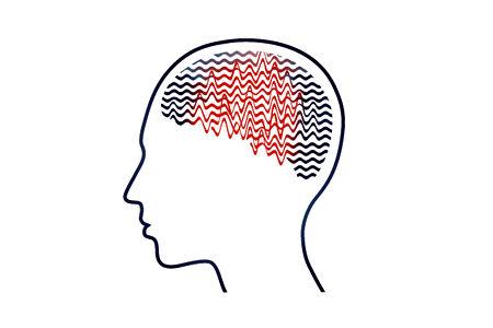 一些状况往往造成大脑产生异常,导致癫痫发作。(Shutterstock)