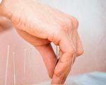 加州中医名师王诗铭教授曾经通过5次施针,治愈了十年闭经症患者。(Shutterstock)