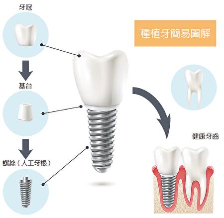 種植牙簡易圖解。(Shutterstock)