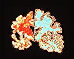 受損大腦(左)與正常人大腦對照示意圖。(PASIEKA/大紀元)