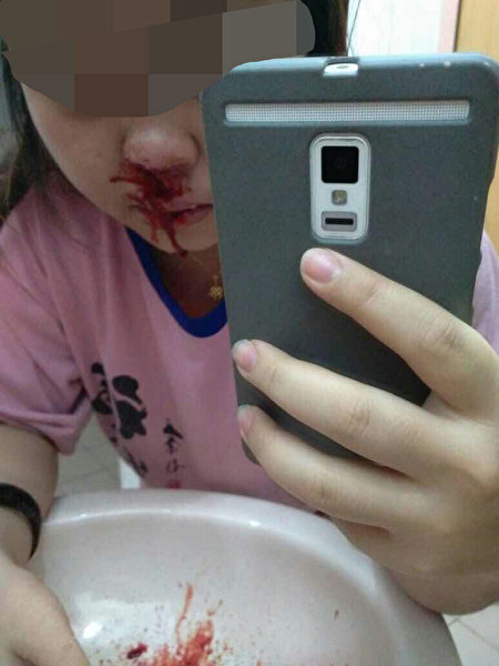 韩国非法微整形速成班上,在以学员为模特进行的美容针注射实习中,由于学员操作技术不当,常常会出现一些事故。图为在注射玻尿酸时,出现鼻部出血现象。(知情人提供)