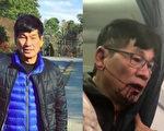 一名医生9日被联合航空强行拖出飞机,引爆全球网友关注。周二(11日)多家媒体报导,揭露这名男子的名字叫David Dao。(大纪元合成图)