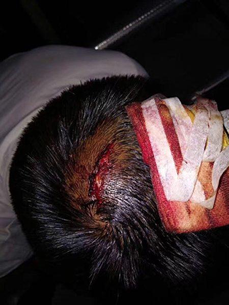 5月19日,湖南永州市新田县十字乡政府院内上演一幕警察暴打村民流血事件,事件起因为垃圾焚烧发电厂选址问题。(村民提供)