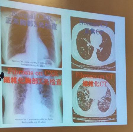 已经发生纤维化的肺部X光检测和CT肺部造影白色部分增多。(大纪元资料图)