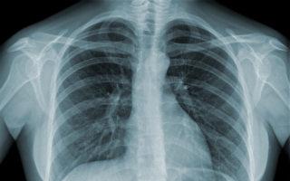肺癌早期可治愈  哪些影像检查能诊断