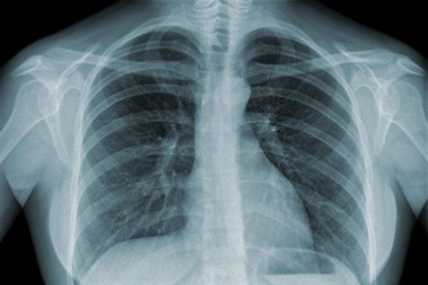 胸部X線檢查是肺癌初診時最基本和首選的影像診斷方法。(eAlisa – Fotolia)