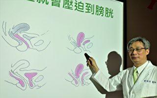 台湾妇产科医学会理事长谢卿宏表示,由于膀胱紧贴子宫,所以子宫有任何疾病,就容易侵犯到膀胱与尿道功能。(黄玉燕/大纪元)