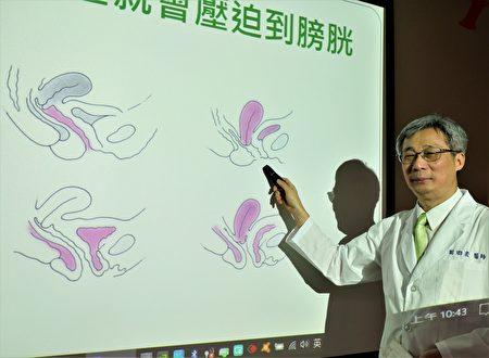 台灣婦產科醫學會理事長謝卿宏表示,由於膀胱緊貼子宮,所以子宮有任何疾病,就容易侵犯到膀胱與尿道功能。(黃玉燕/大紀元)