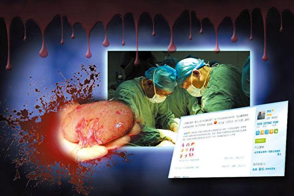 早在文革前后,利用军队系统搞器官移植,特别是使用活体器官来提高移植品质成为了中共器官移植的特色,而罔顾伦理正是中共器官移植的罪恶所在。(网络图片)