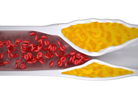 研究发现海带具有抑制粥状动脉硬化之功效。(Fotolia)