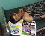 7月26日凌晨,吉林大安市联合乡后四平山村村民李平(化名)家里闯进中铁十四局百余名强拆人员,5人被打成重伤。(村民提供)