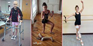 脚踝当膝关节 截肢少女双足舞出芭蕾梦