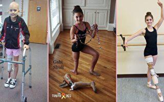 以腳踝為膝蓋,從癌症中康復的美國少女再次穿上芭蕾舞鞋,用雙腳跳舞。(curesearch.org,The Truth 365/大紀元合成)