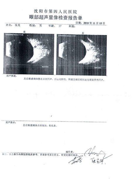 在該事件中張龍的眼睛被爆打導致視神經萎縮。(張龍提供)