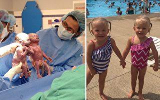 当年手牵手出世的双胞胎姐妹,如今仍然手牵手,形影不离。(Akron Children's Hospital,Facebook: Sarah Thistlethwaite/大纪元合成)