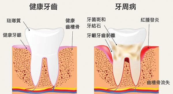 健康牙齒和牙周病牙齒的區別。(Shutterstock/大紀元製圖)