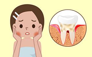 牙周病会自己好起来吗?6种症状要小心