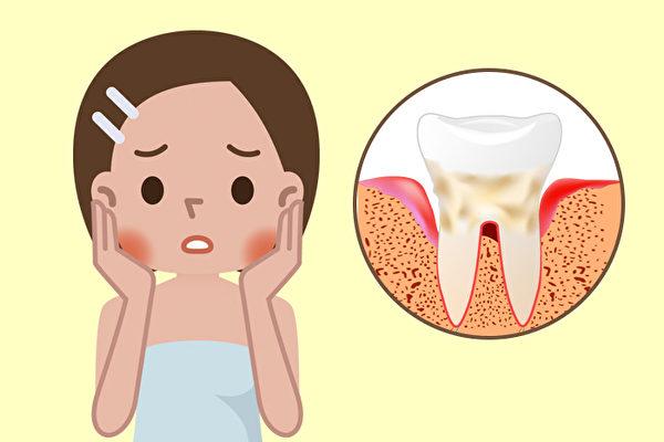 牙齦紅腫發炎流血,可能是牙周病症狀,牙周病如何治療?(Shutterstock)