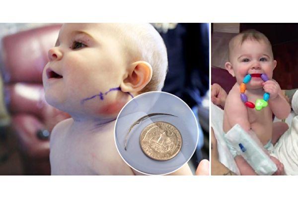 当时七个月大的迈雅,左脸下方出现异常肿胀,医生一开始并未检查出病因。(视频截图/大纪元合成)