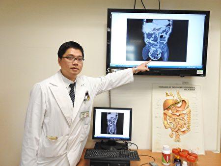 高國堯醫師指出,陳姓老翁疝氣延誤就醫,近百公分大腸小腸掉進陰囊裡,腫成哈密瓜大小。(賴瑞/大紀元)