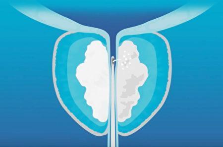 前列腺肥大的Rezum手術治療。(健康1+1提供)