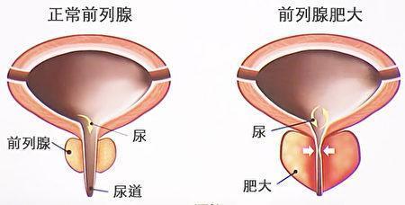 前列腺肥大会压迫尿道,影响排尿。(谈古论今话中医提供)