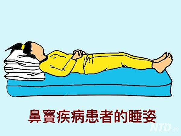 鼻竇患者的睡姿。(Ntd.tv)