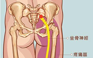 预防坐骨神经痛 中医师教按摩三穴道